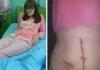 Nastavljeno suđenje bijeljinskim ljekarima zbog zaboravljenih dva metra gaze u stomaku porodilje