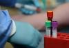 U Srpskoj osam novih slučajeva virusa korona