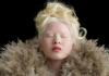 """Od sirotišta do """"Voga"""": Devojka sa albinizmom postala model"""