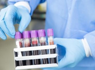 U Rusiji počelo testiranje tri preparata za liječenje virusa korona