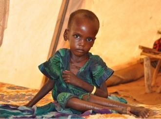 U Etiopiji 100.000 djece teško neuhranjeno