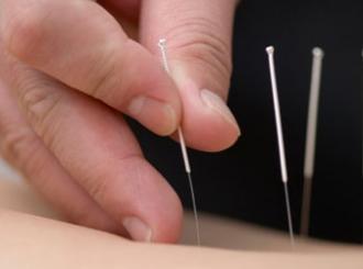 Iglu za akupunkturu našli u plućima