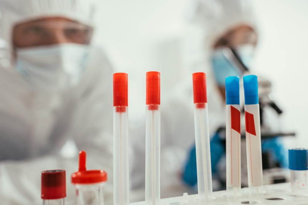 Jedanaest novozaraženih virusom korona u Srpskoj
